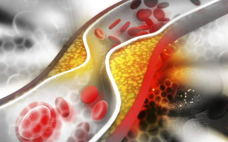 Everything You Should Know About Cholesterol Blood vessel
