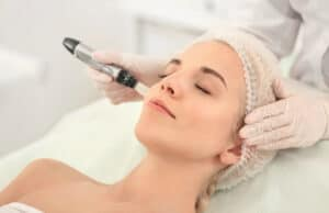 Microneedling with platelet rich plasma