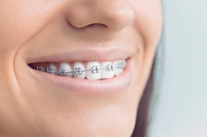 Dental implants and braces