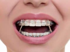What do rubber bands do on braces